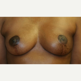 53 year old woman - left needle localization  lumpectomy followed by reconstruction and mastopexy after 3042398