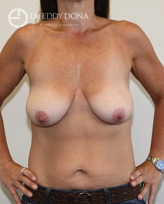 35-44 year old woman treated with Breast Lift No Implants  before 1616962