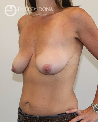 35-44 year old woman treated with Breast Lift No Implants  1616962