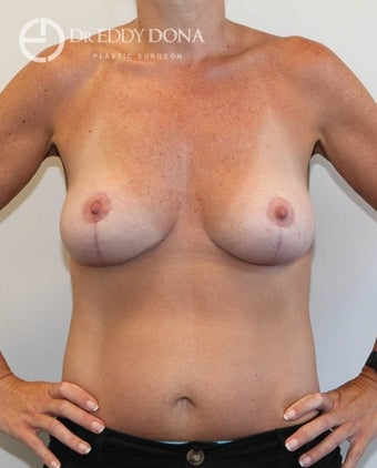 35-44 year old woman treated with Breast Lift No Implants  after 1616962