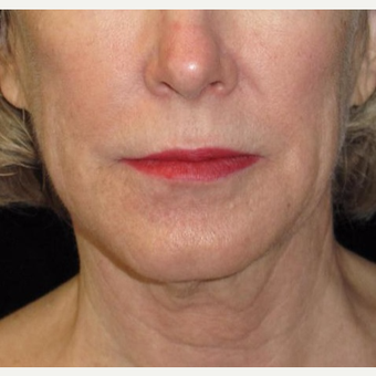 61 year old woman treated with Facelift and Necklift before 2833879