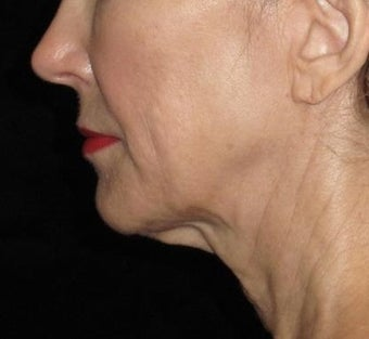 61 year old woman treated with Facelift and Necklift 2833879