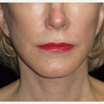 61 year old woman treated with Facelift and Necklift after 2833879