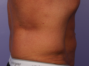 CoolSculpting by Zeltiq to Love Handles/Flanks after 375519