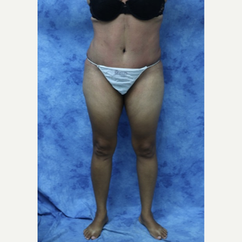 35-44 year old woman treated with Tummy Tuck after 3177942