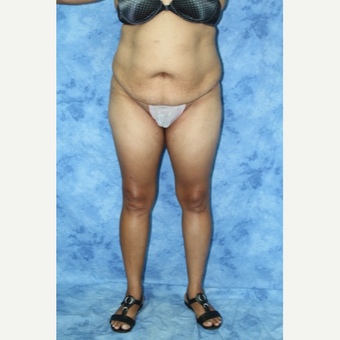 35-44 year old woman treated with Tummy Tuck before 3177942