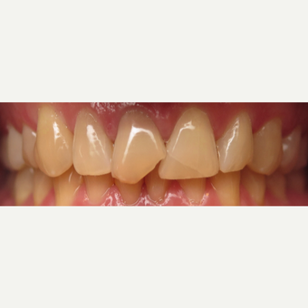 25-34 year old man treated with Elite Crowns before 3202916