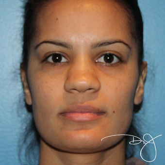 25-34 year old woman treated with Rhinoplasty before 3038325