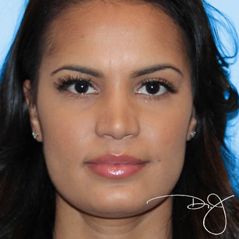 25-34 year old woman treated with Rhinoplasty after 3038325