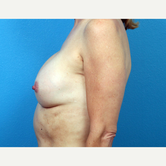 45-54 year old woman treated with Breast Implant Revision before 3366771