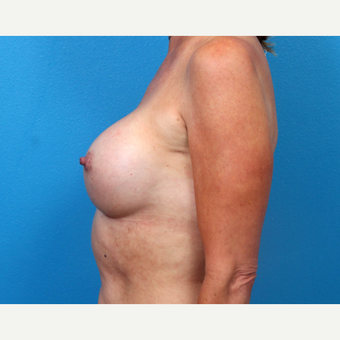 45-54 year old woman treated with Breast Implant Revision after 3366771