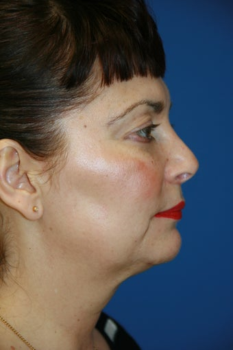 55-64 year old woman treated with Facelift 1696214