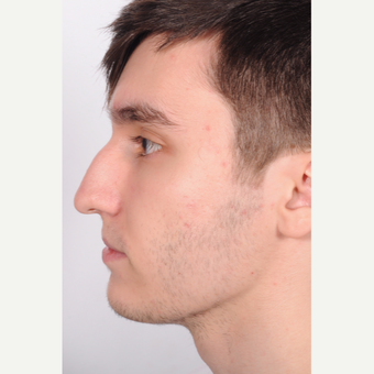 Treated with Rhinoplasty before 2894045