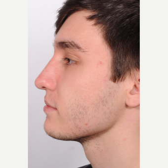 Treated with Rhinoplasty after 2894045