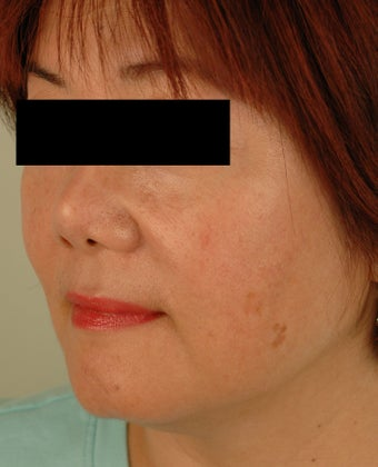 Sun Spot Removal for Asian Skin before 1134384