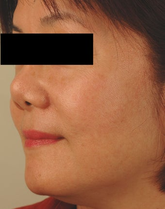 Sun Spot Removal for Asian Skin after 1134384