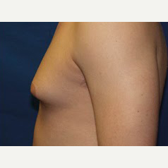 18-24 year old man treated with Male Breast Reduction before 3374866