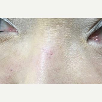 35-44 year old woman treated for traumatic and iatrogenic Scar