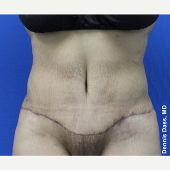 35-44 year old woman treated with Tummy Tuck after 3679802