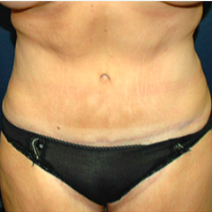 39 year old woman treated with Tummy Tuck after 3578416