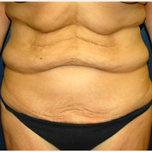 39 year old woman treated with Tummy Tuck before 3578416