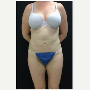 25-34 year old woman treated with Liposuction to Abdomen & Thighs after 3200805
