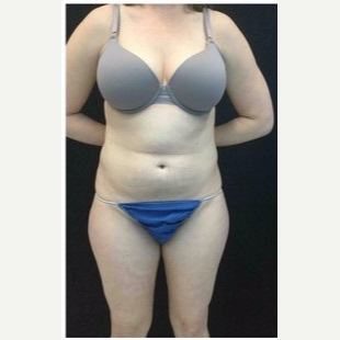 25-34 year old woman treated with Liposuction to Abdomen & Thighs before 3200805