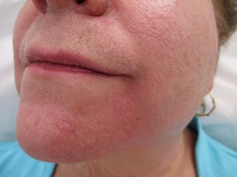 66 year old female treated with Radiesse for Marionette Lines after 995546