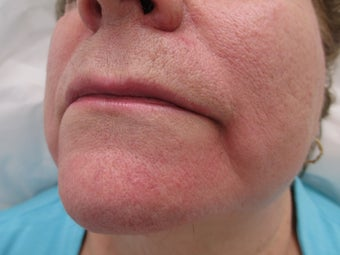 66 year old female treated with Radiesse for Marionette Lines before 995546