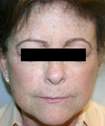 Ultherapy after 921883