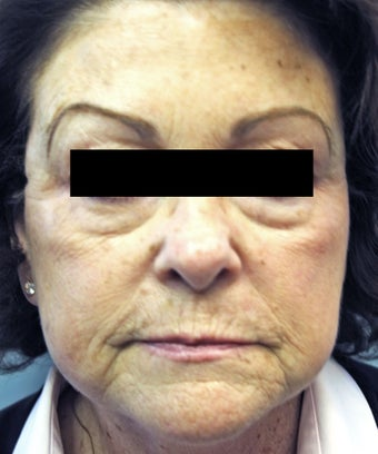 Ultherapy before 921883
