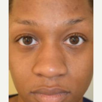 25-34 year old woman treated with African American Rhinoplasty before 2765368