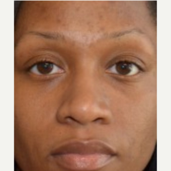 25-34 year old woman treated with African American Rhinoplasty after 2765368