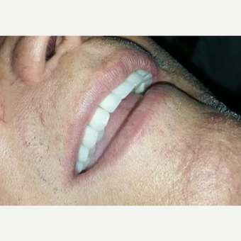 65-74 year old man treated with Smile Makeover after 3630950