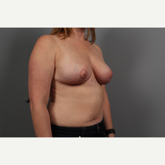 35-44 year old woman treated with Breast Lift after 2976666