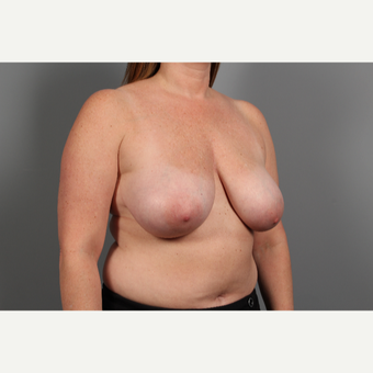35-44 year old woman treated with Breast Lift before 2976666