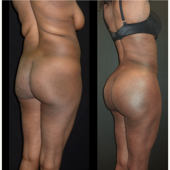 25-34 year old woman treated with Brazilian Butt Lift before 3717655