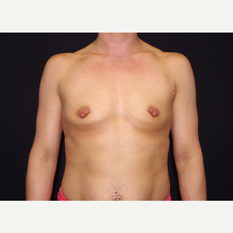 25-34 year old woman treated with Breast Augmentation before 3439721