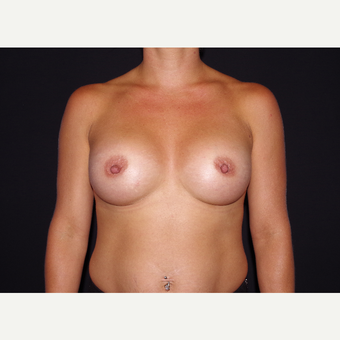 25-34 year old woman treated with Breast Augmentation after 3439721