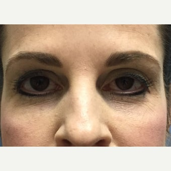 45-54 year old woman treated with Restylane after 2050229