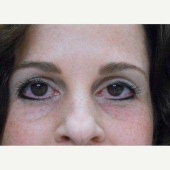 45-54 year old woman treated with Restylane before 2050229