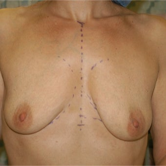 35-44 year old woman treated with Breast Lift with Implants before 1874841