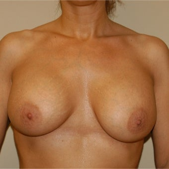35-44 year old woman treated with Breast Lift with Implants after 1874841