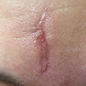 35 year old woman, scar treatment with RecoSMA before 3499222