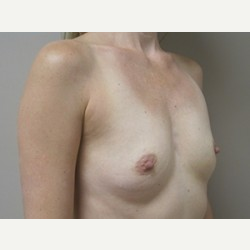 Breast Implants before 3373624