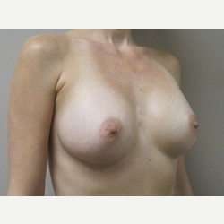 Breast Implants after 3373624