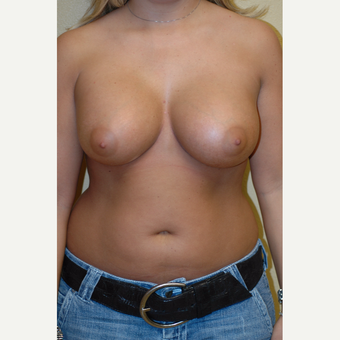 18-24 year old woman treated with Breast Augmentation after 3564664