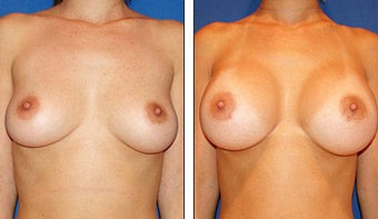 Breast Augmentation before 1115630