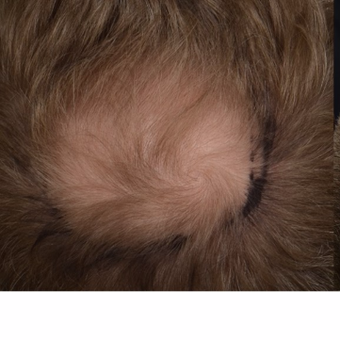 35-44 year old man treated with FUE Hair Transplant before 3808589