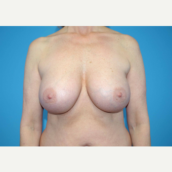 45-54 year old woman treated with Breast Implants after 3439987